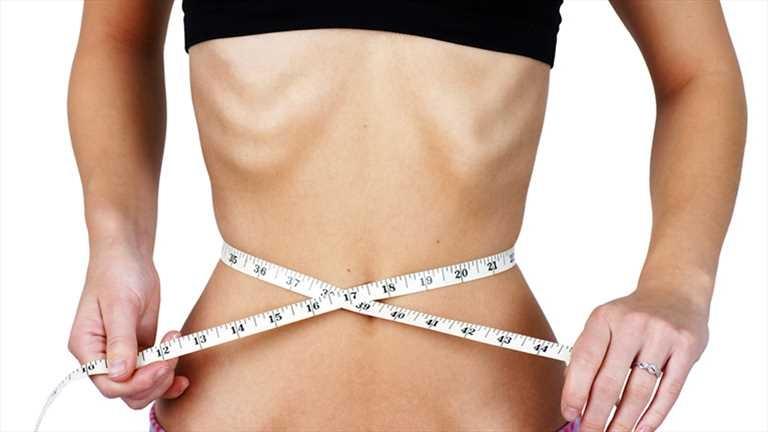 anoreksia nervoza