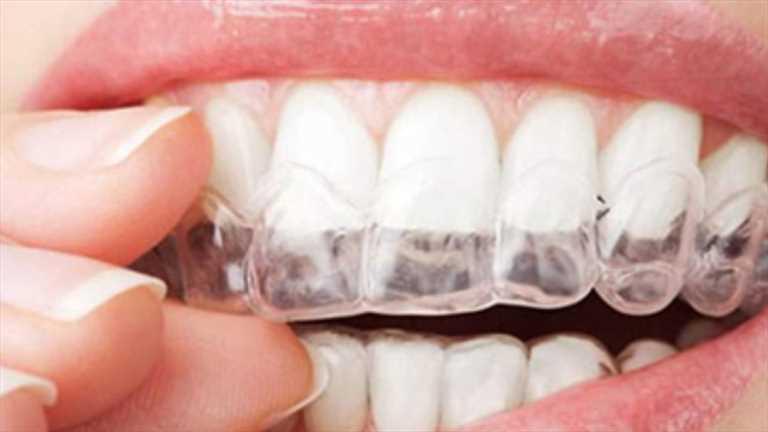 """""""Ortodonti'de Yeni Tedavi Yöntemi; Şeffaf Plaklar"""""""