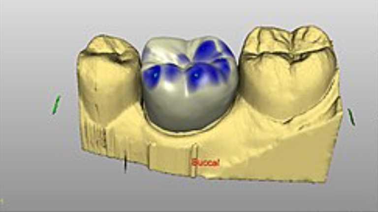 Cad-Cam Sistemleri Diş Hekimliği Alanında Çığır Açtı