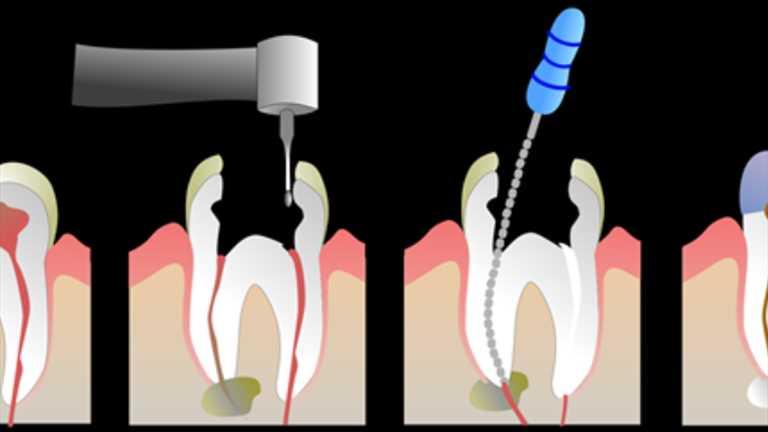 Kanal Tedavisinde Dental Operasyon Mikroskobunun Kullanımı Başarı Oranını Arttırdı